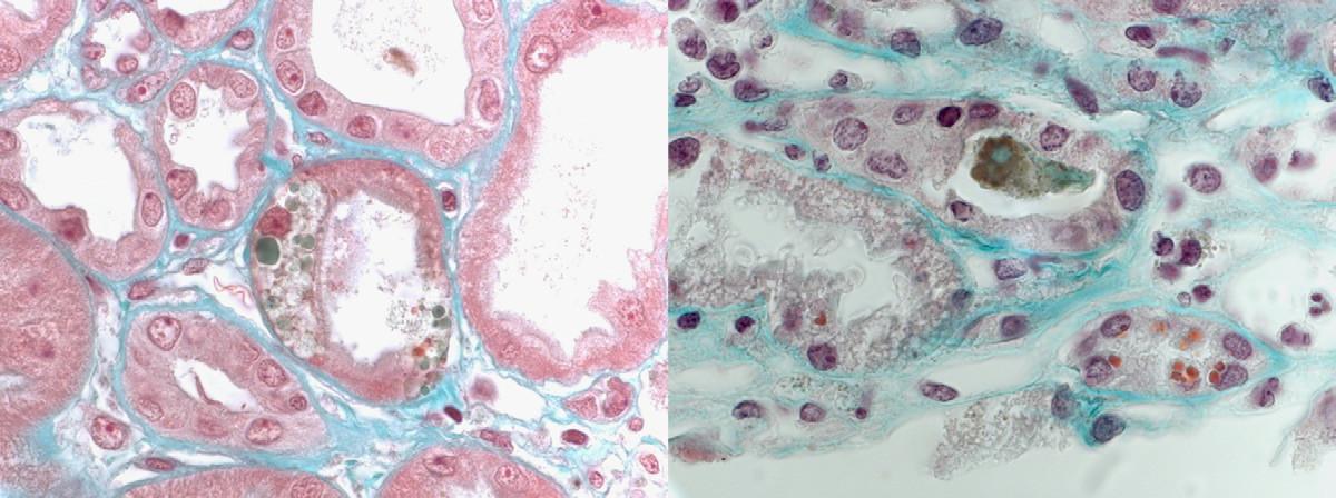 bile thrombi