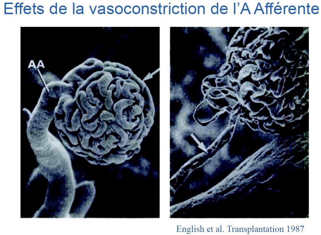 VasoconstrictionAA